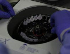 Número de casos investigados de coronavírus no Brasil cai para quatro