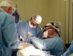SUS passa a realizar cirurgia de ponte de safena sem abertura do tórax no RN