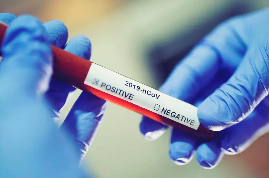 RN confirma mais 1.146 casos e 13 mortes por covid-19, sendo 10 em 24h